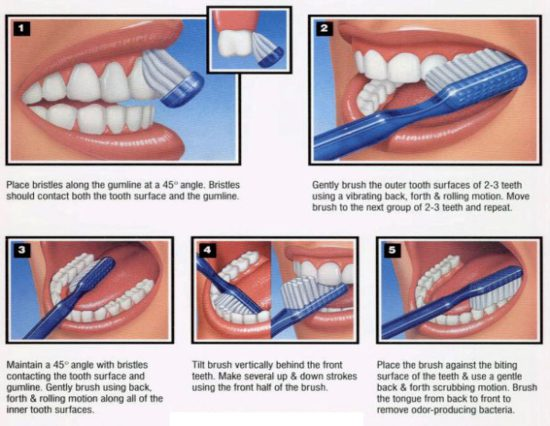 Instructions image on Brushing your Teeth