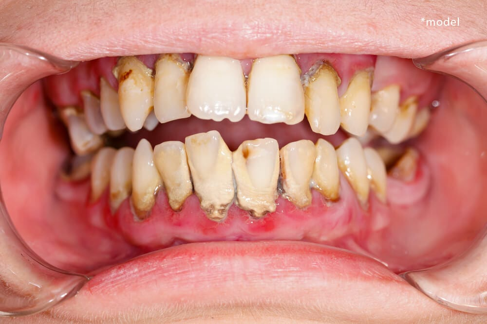 Mouth with signs of periodontal disease.