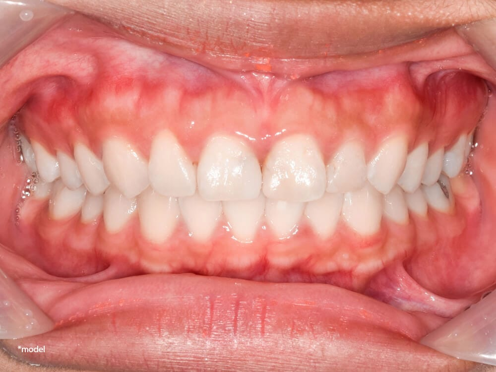Inside view of a mouth and gums.