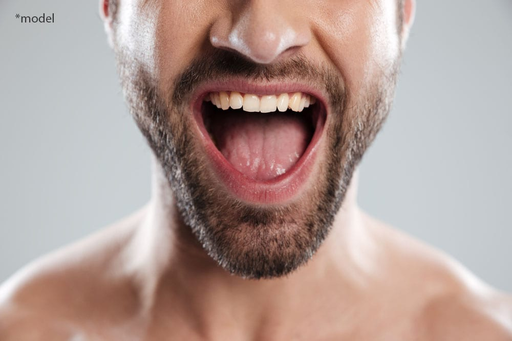 Man opening mouth to show teeth and tongue.