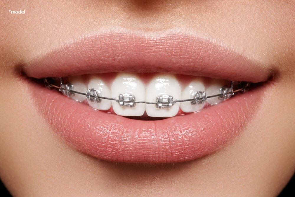 Mouth of a woman with braces.
