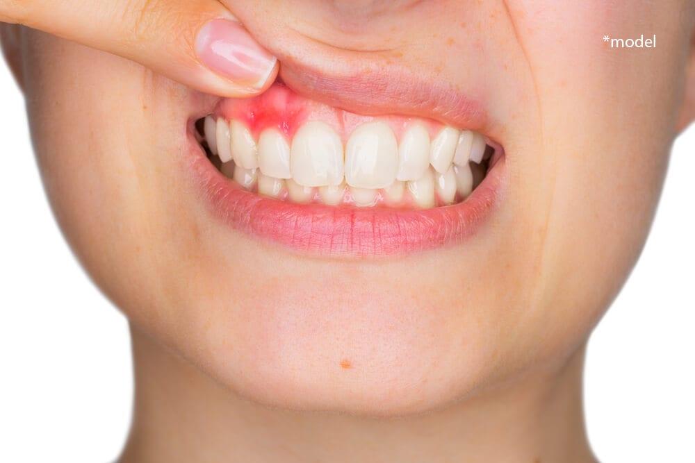 Woman showing swollen gums.