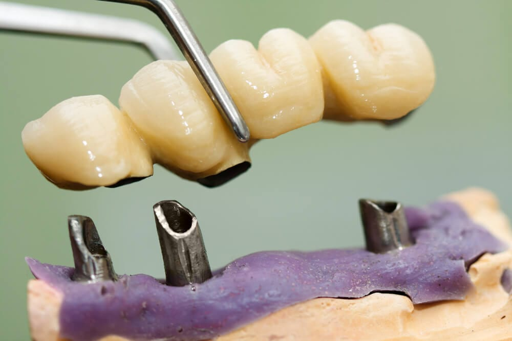 Dental bridge being placed on implants.
