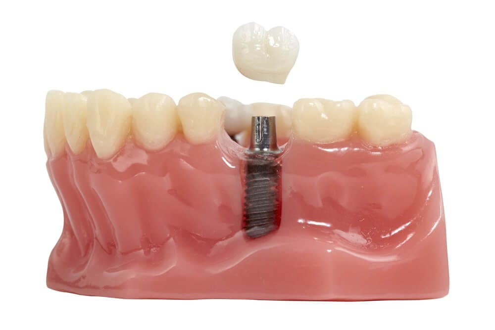 Mandible model of a dental implant.