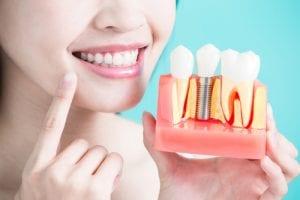 woman take tooth implant false tooth