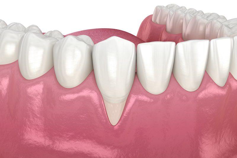 Vector illustration of receding gums on a dental mold.